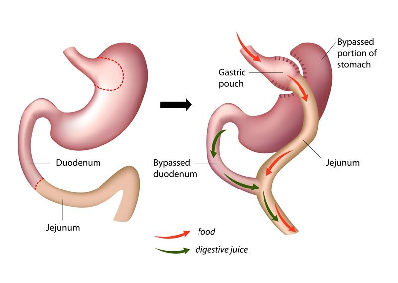 Gastric bypass - Surgery Melbourne