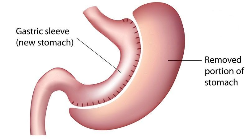 Gastric Sleeve - Surgery Melbourne