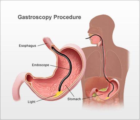 Gastroscopy procedure