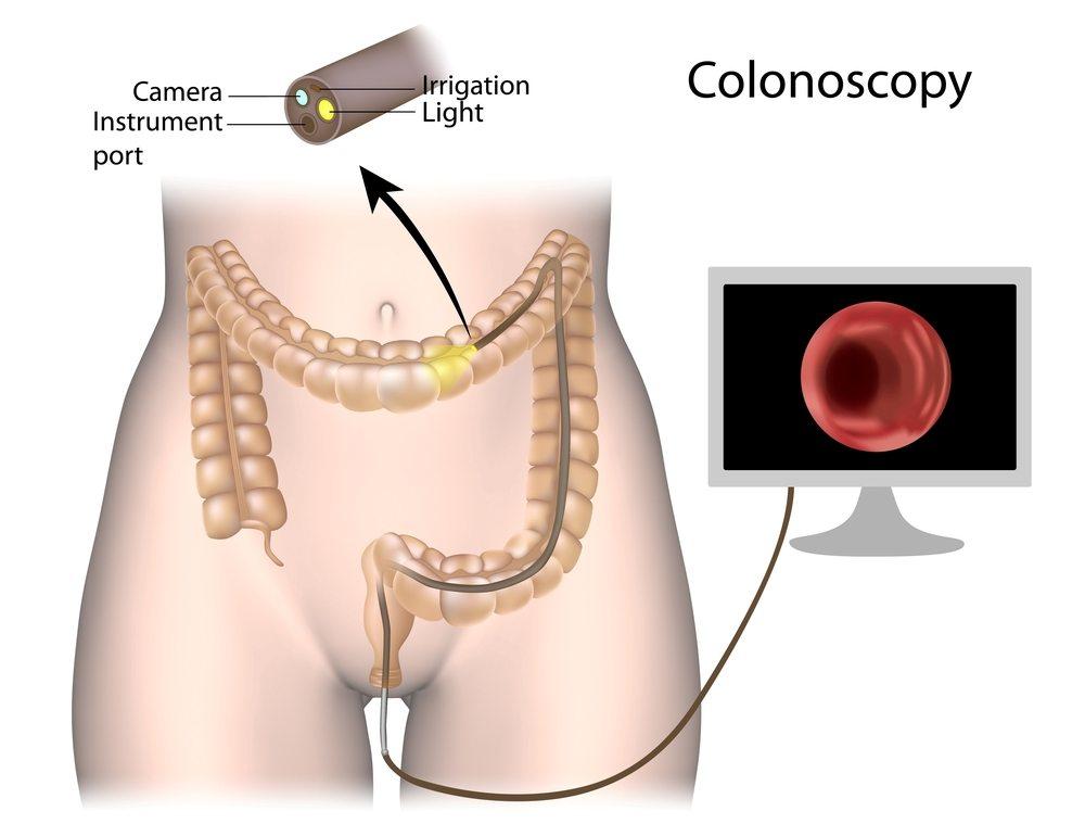 Colonoscopy Melbourne