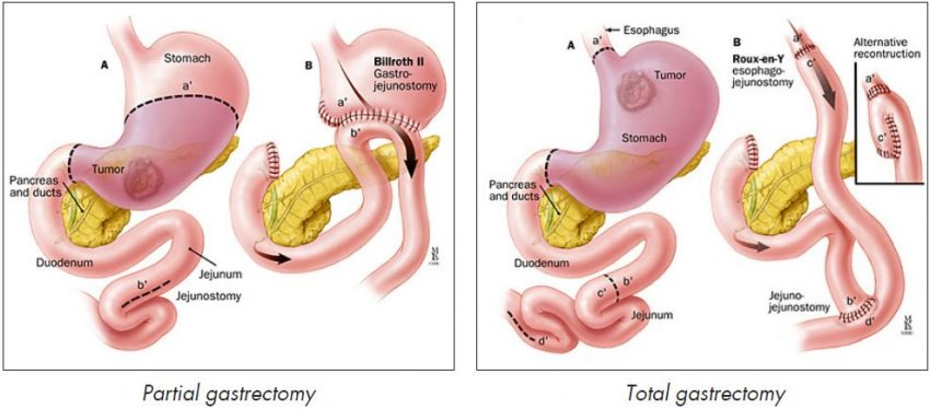Partial or Total Gastrectomy