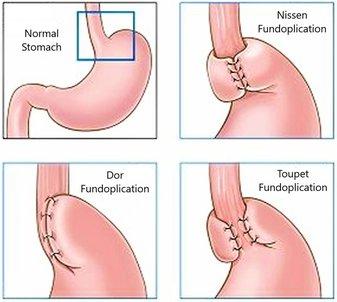 Anti Reflux (Fundoplication) Surgery