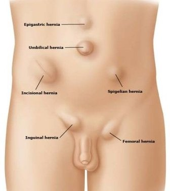 Different types of hernia
