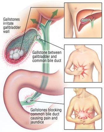 Gallstones & Gall Bladder